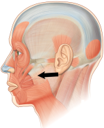 Diagram: Masseter muscles
